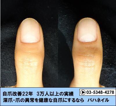 親指の爪の真ん中がへこんでいる症状