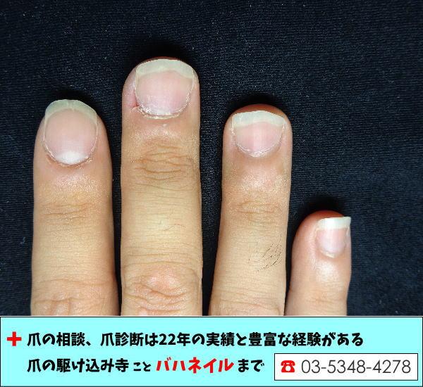 短期間で深爪が4倍速で伸びた変化(男性編)
