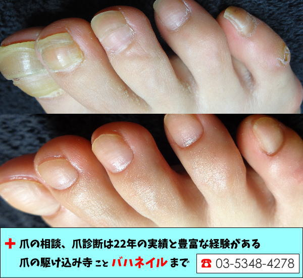 足の親指の爪が変形