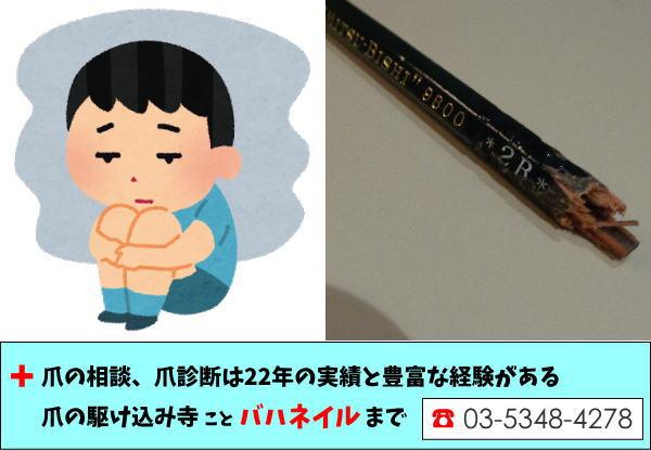 子供の爪を噛む癖を治したい