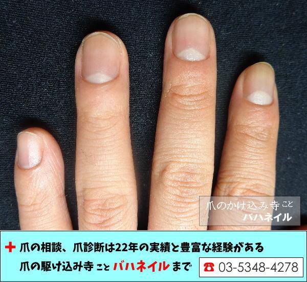 比べてみればわかります。男性の深爪