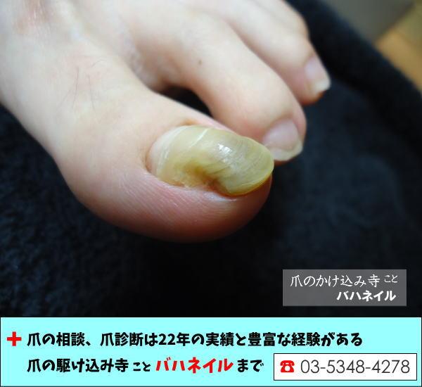 足の親指の厚み(爪甲鉤弯症)