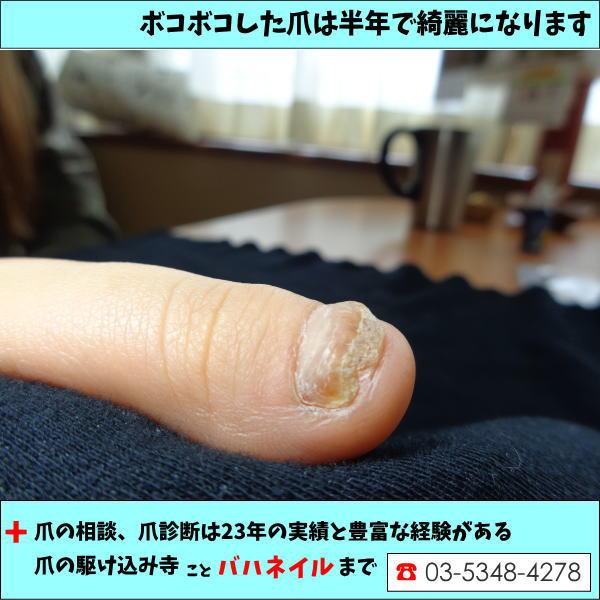 病院で解決出来なかった爪