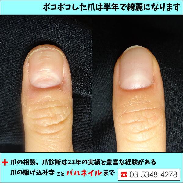 親指の爪がへこむ