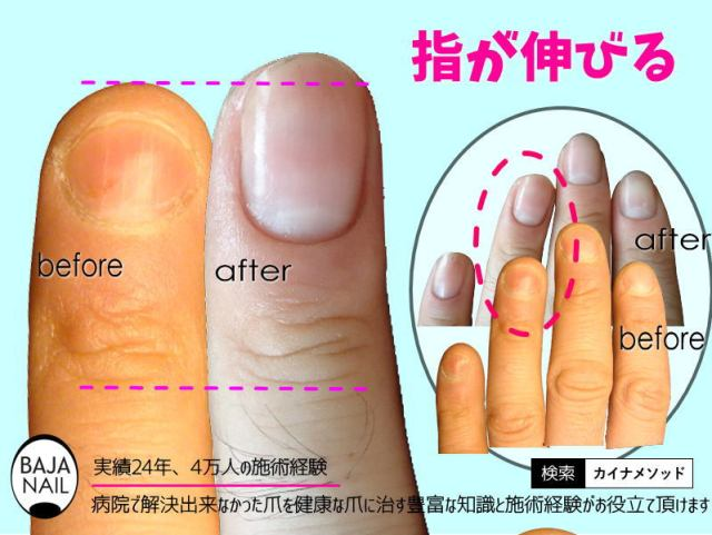 指が伸びる方法