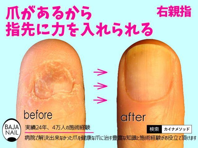 指が長くなる方法