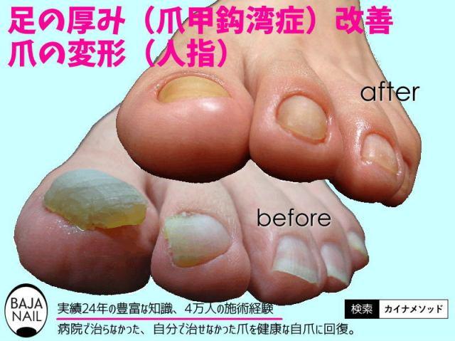 足の爪 厚みや変形