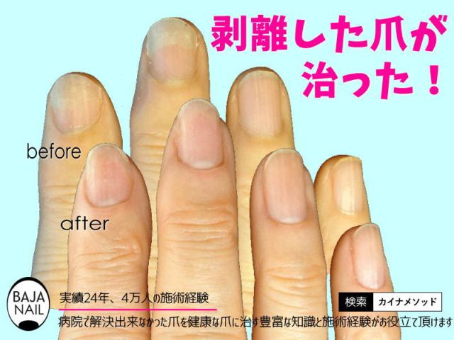 爪がはがれる
