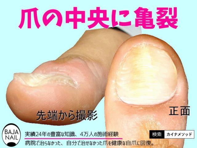 爪の中央に亀裂