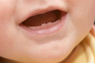 dentini da latte