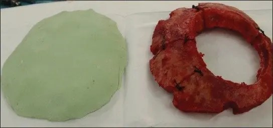 An example of biomaterial implementation for reconstruction of cranial bone defects. After cranial surgery, artificial flaps made of methylmetacrylate are being used for covering of bone defects. Such artificial flap (on the left) was made according to the original and will replace the damaged original bone flap (right).