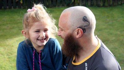 Implanty słuchowe – decyzja, którejnie jeszcze niepodjąłem