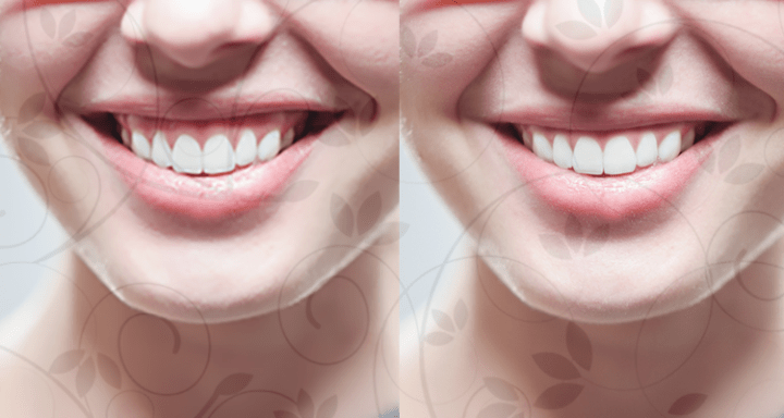How The Minimize A Gummy Smile