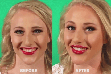 How To Correct A Gummy Smile Instantly