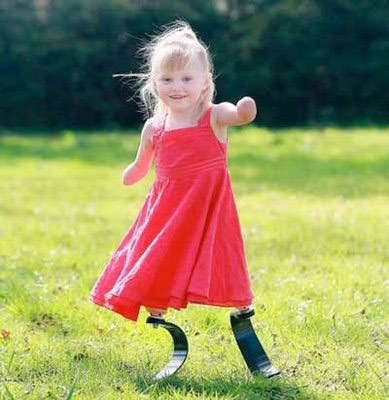 Ellie May, At 5 Years Old, Is The Youngest Person Ever To Have Carbon Fiber Legs