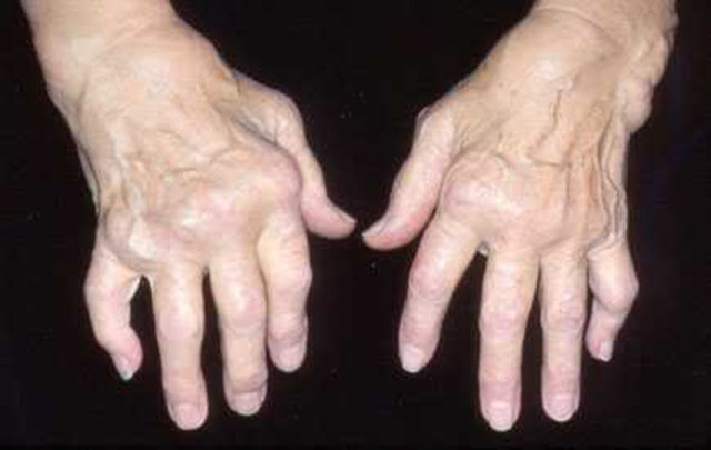 person's hands who is suffering from arthritis