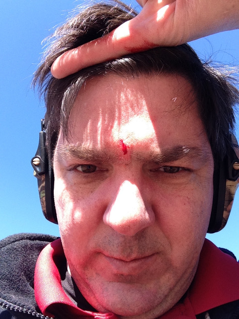 man with scope bite cut on forehead