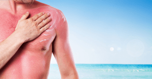 Secrets to Treating Sunburn