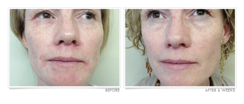 Severe Perioral Dermatitis Before & After