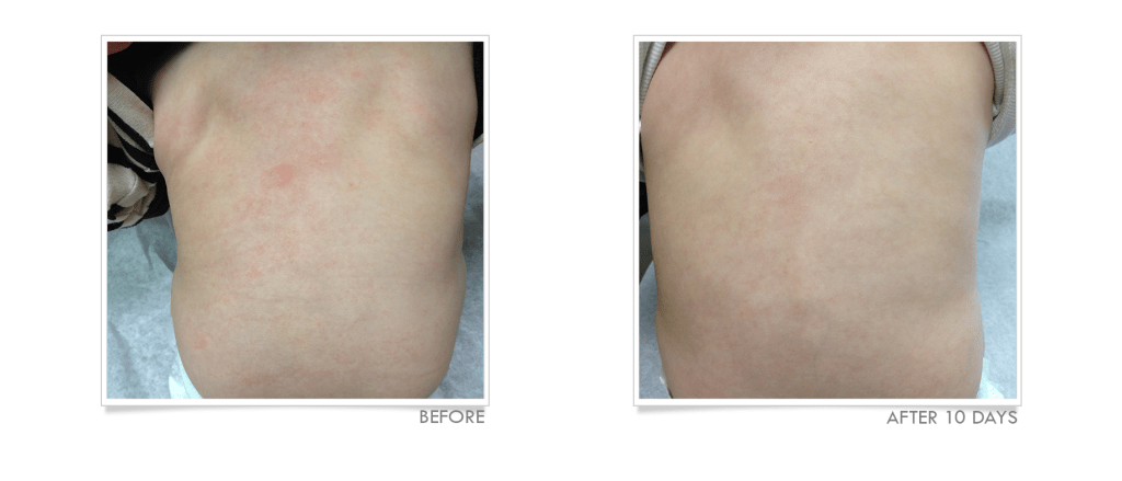 Eczema on Back Before & After