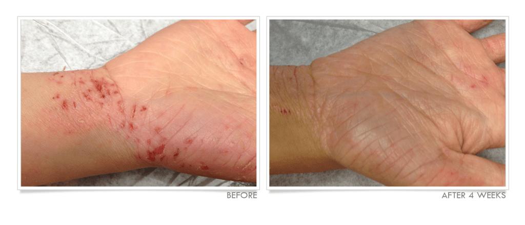 Eczema on Hand Before & After TrueLipids