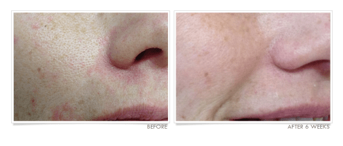 Pore Size Reduction Before & After
