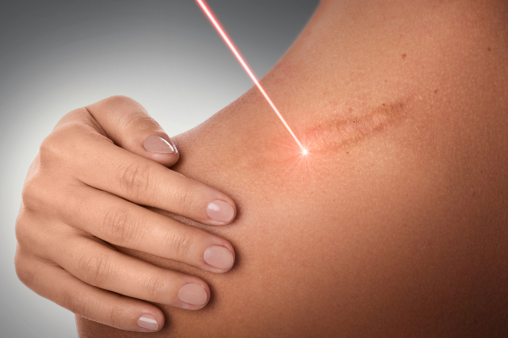 cancer de pele laser
