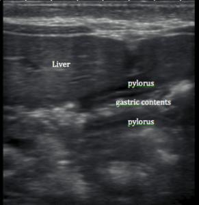 normal pylorus