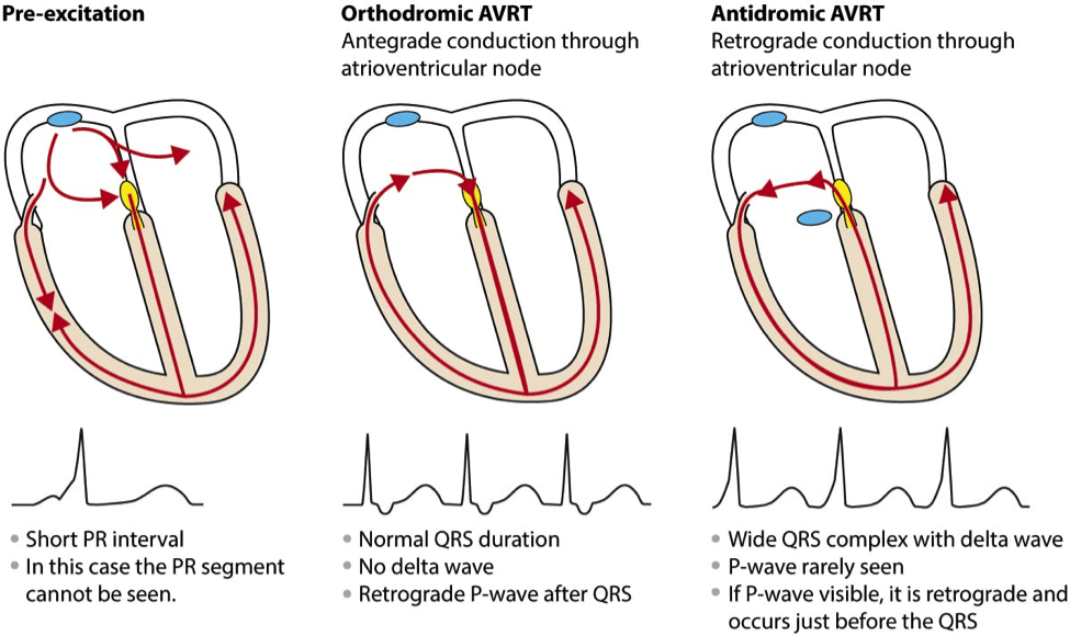 Atrial Fibrillation in WPW Syndrome - Pearls and Pitfalls
