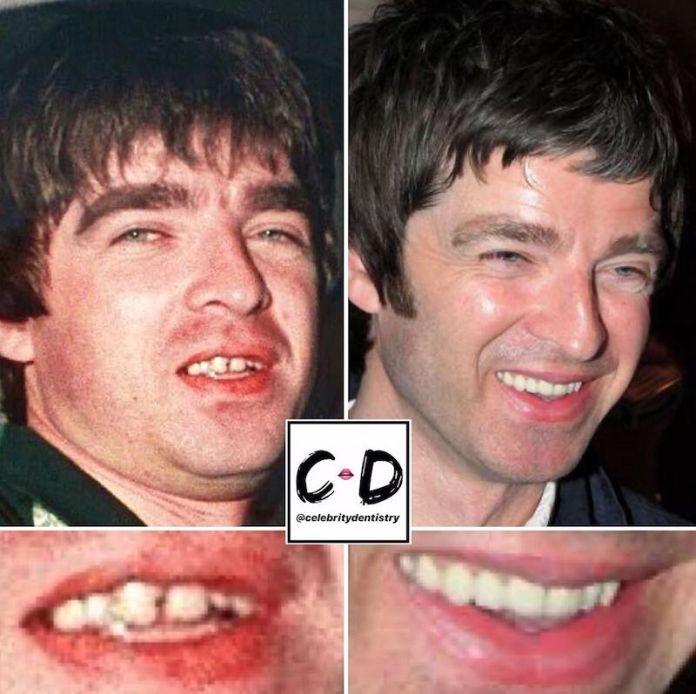 cliomakeup-denti-star-teamclio-2