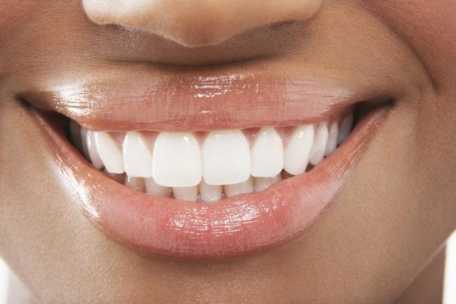 cliomakeup-come-sbiancare-i-denti-salvia-linkedin.jpg