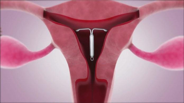 ClioMakeUp-spirale-anticoncezionale-intrauterino-13-impianto-iud-utero-ovaie.jpg