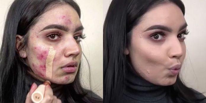cliomakeup-fondotinta-per-pelle-con-acne-11-fondotinta-coprente-acne