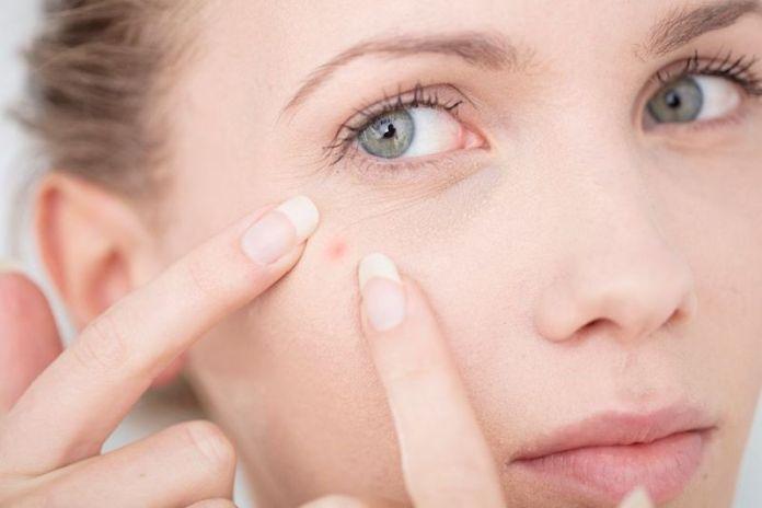 cliomakeup-fondotinta-per-pelle-con-acne-3-schiacciare-brufoli