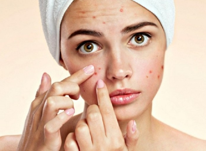 cliomakeup-dieta-acne-infiammatoria