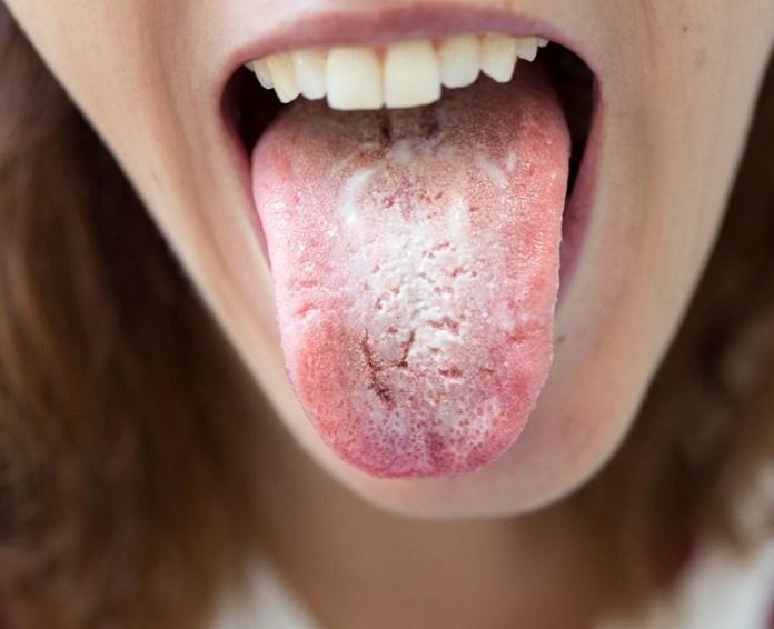 cliomakeup-candida-vaginale-5-candida-bocca