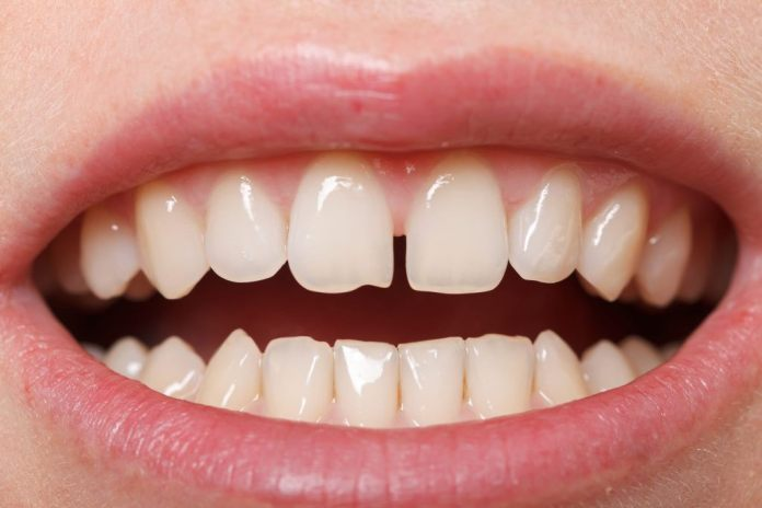 cliomakeup-diastema-dentale-star-22-denti