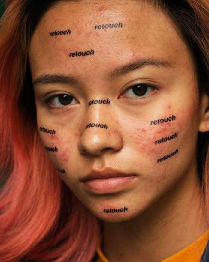 cliomakeup-effetto-rebound-acne-11