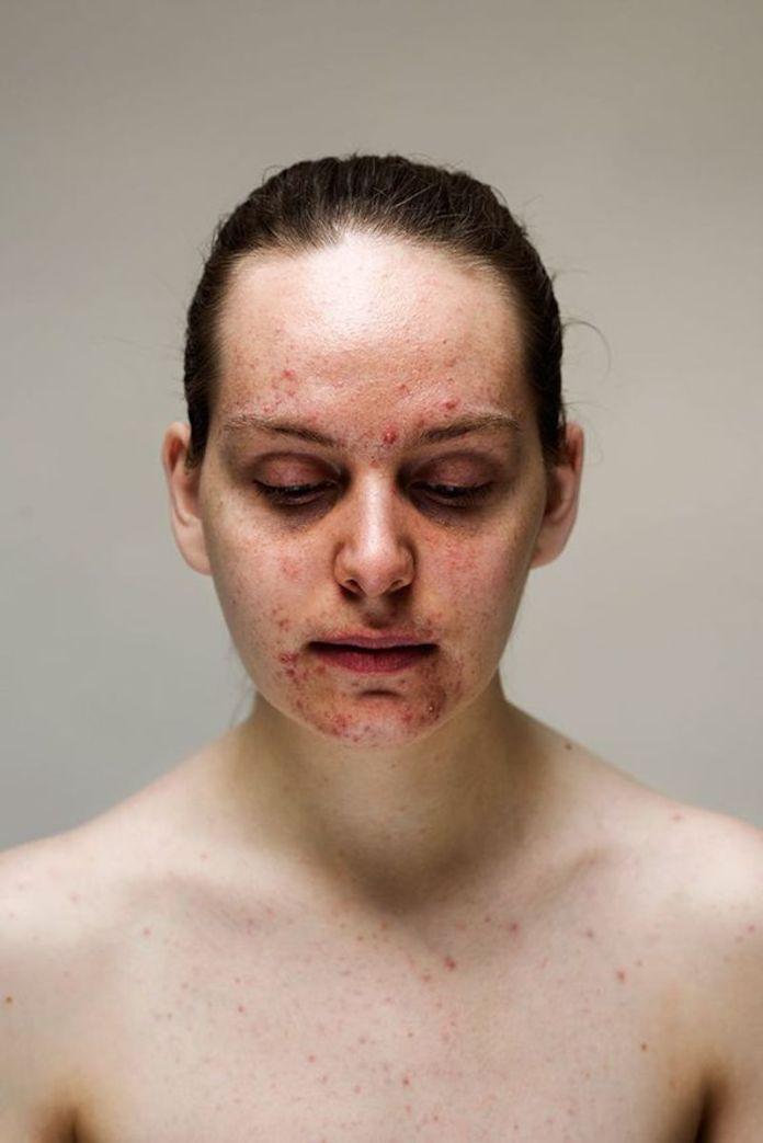 cliomakeup-effetto-rebound-acne-8