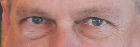 Het resultaat van het stempelen met het rechteroog.