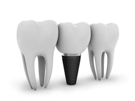 Can dental implants fail?