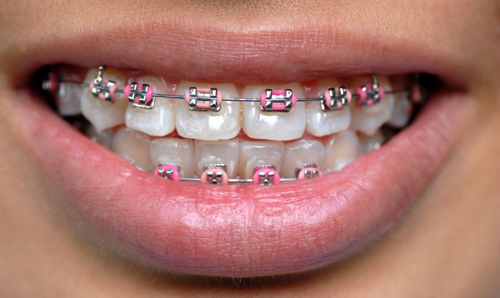 How Braces are fitted and How they work