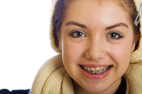 Orthodontics for kids