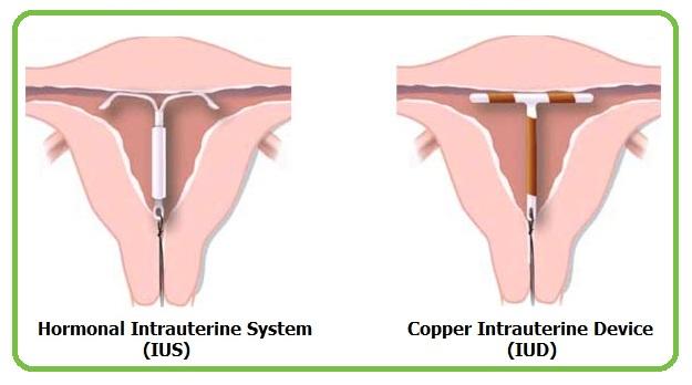 copper IUD plate insertion
