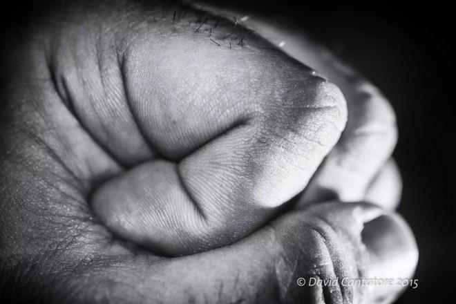 Closed hand