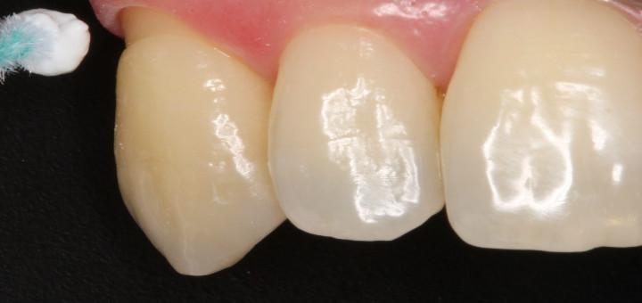 Tratamento de Hipersensibilidade Dentária