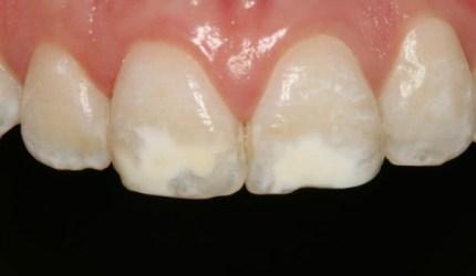 Tratamento conservador por meio de clareamento dental e restaurações adesivas