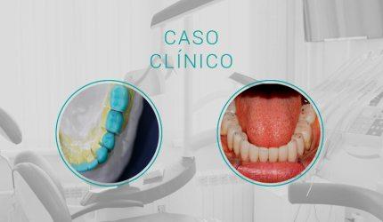 Caso clínico classe II de Angle com Overjet de 3mm e Overbite de 3mm – perda de DVO.