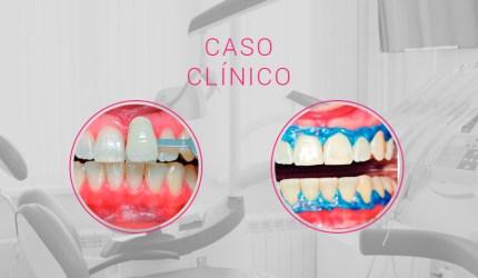Clareamento dental: nova perspectiva para a Odontologia Estética