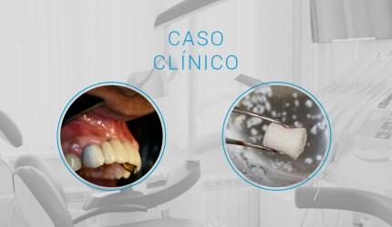 Caso Clínico: Utilização de enxertos ósseos para regeneração da maxila atrófica
